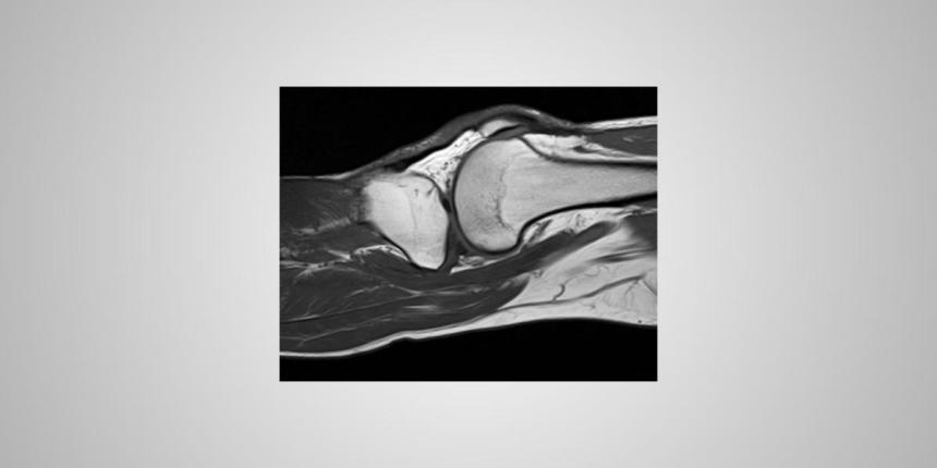 MRI knee abnormal