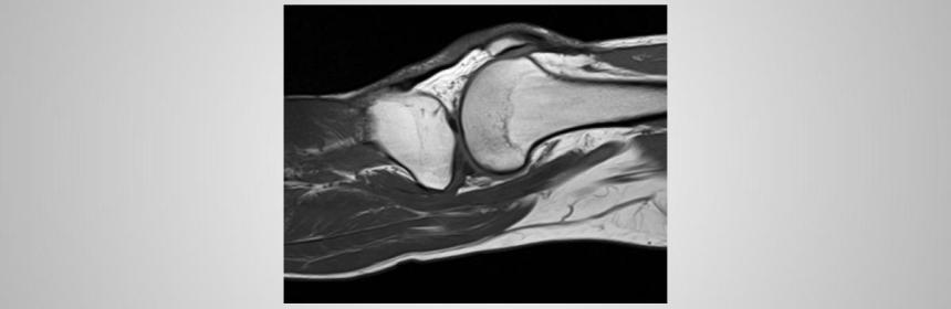 MRI knee abnormal